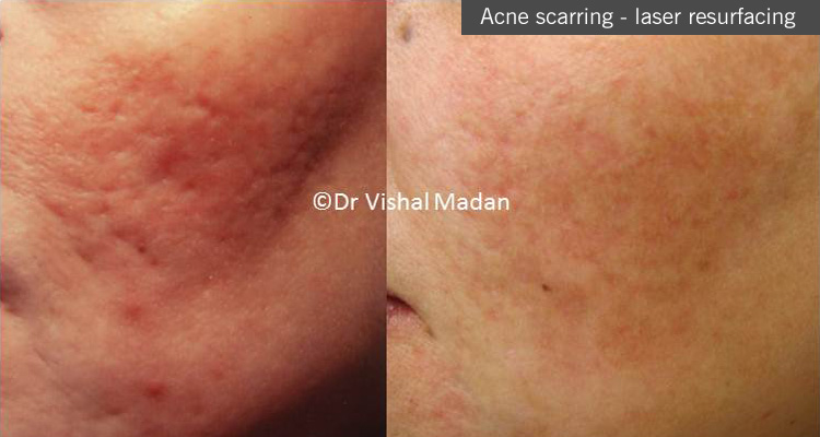 acne scarring treatment in manchester. Acne dermatologist Manchester
