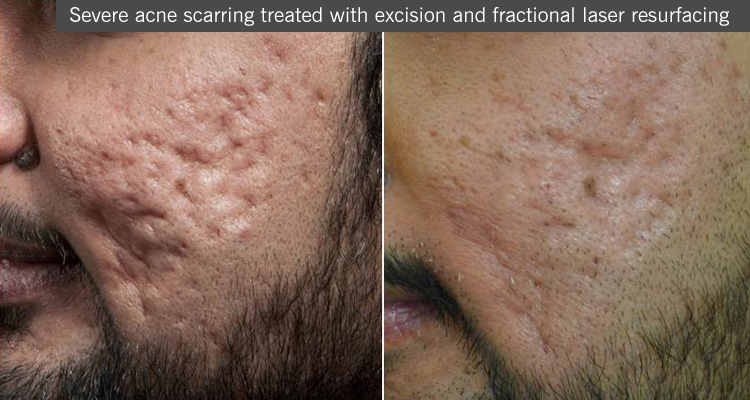 scarring treatment acne manchester dermatologist