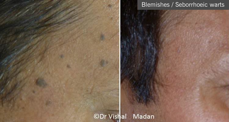 Blemish treatment dermatologist