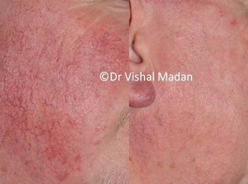 facial thread vein treatment manchester dermatology clinic
