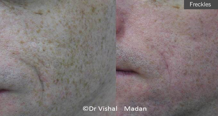 freckles removal treatment manchester dermatology clinic
