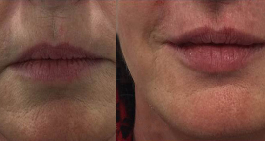 botox and lip fillers dermal fillers manchester. Cosmetic Dermatology