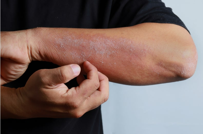 When To See a Dermatologist For Eczema