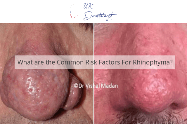 What are the Common Risk Factors For Rhinophyma?