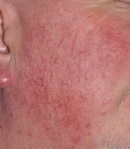 Rosacea treatment manchester