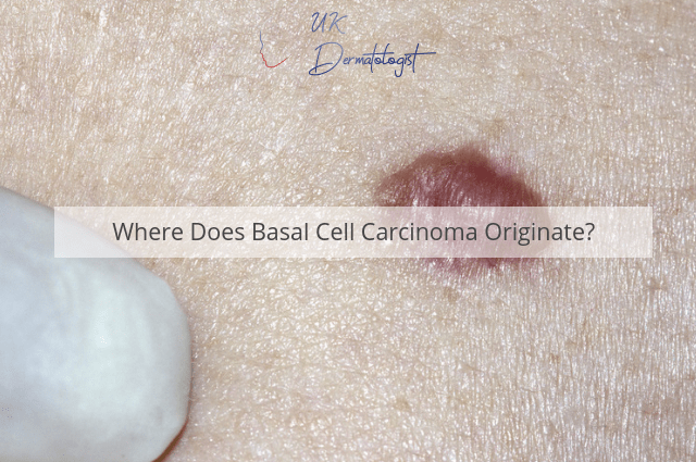 Where Does Basal Cell Carcinoma Originate?