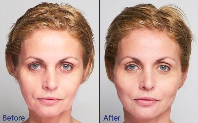 Silhouette soft before and after. Manchester Dermatologist